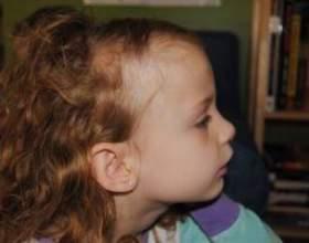 Як впоратися з алопецією у дитини: поради експертів фото