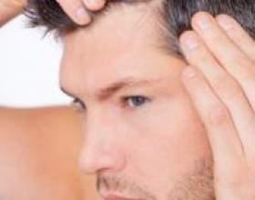 Вітаміни від випадіння волосся для чоловіків: в яких продуктах вони містяться і як їх приймати? фото